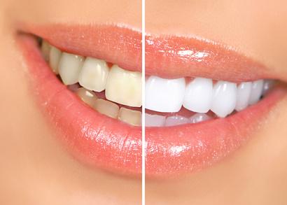 blanqueamiento dental | teeth whitening